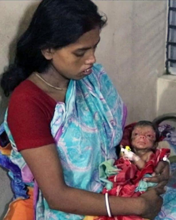 Cả ê-kíp bác sĩ đỡ đẻ choáng váng khi em bé chào đời trong hình hài của một ông lão 80 tuổi - Ảnh 5.