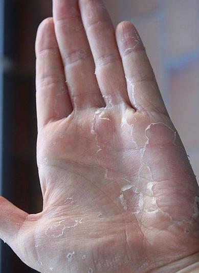 """10 biểu hiện bất thường trên tay đang ngầm """"tố cáo"""" hàng loạt vấn đề sức khỏe mà bạn không ngờ đến - Ảnh 1."""