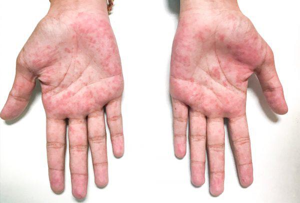 """10 biểu hiện bất thường trên tay đang ngầm """"tố cáo"""" hàng loạt vấn đề sức khỏe mà bạn không ngờ đến - Ảnh 8."""