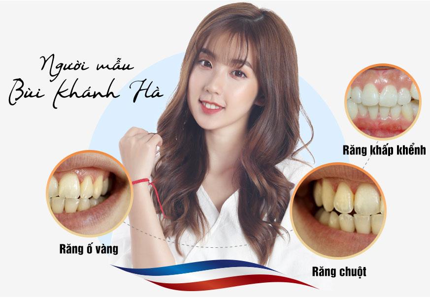 Những dáng răng sứ CỰC HOT hứa hẹn khuấy đảo năm 2020 - Ảnh 1.