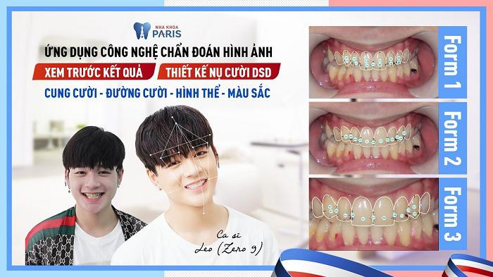 Những dáng răng sứ CỰC HOT hứa hẹn khuấy đảo năm 2020 - Ảnh 5.