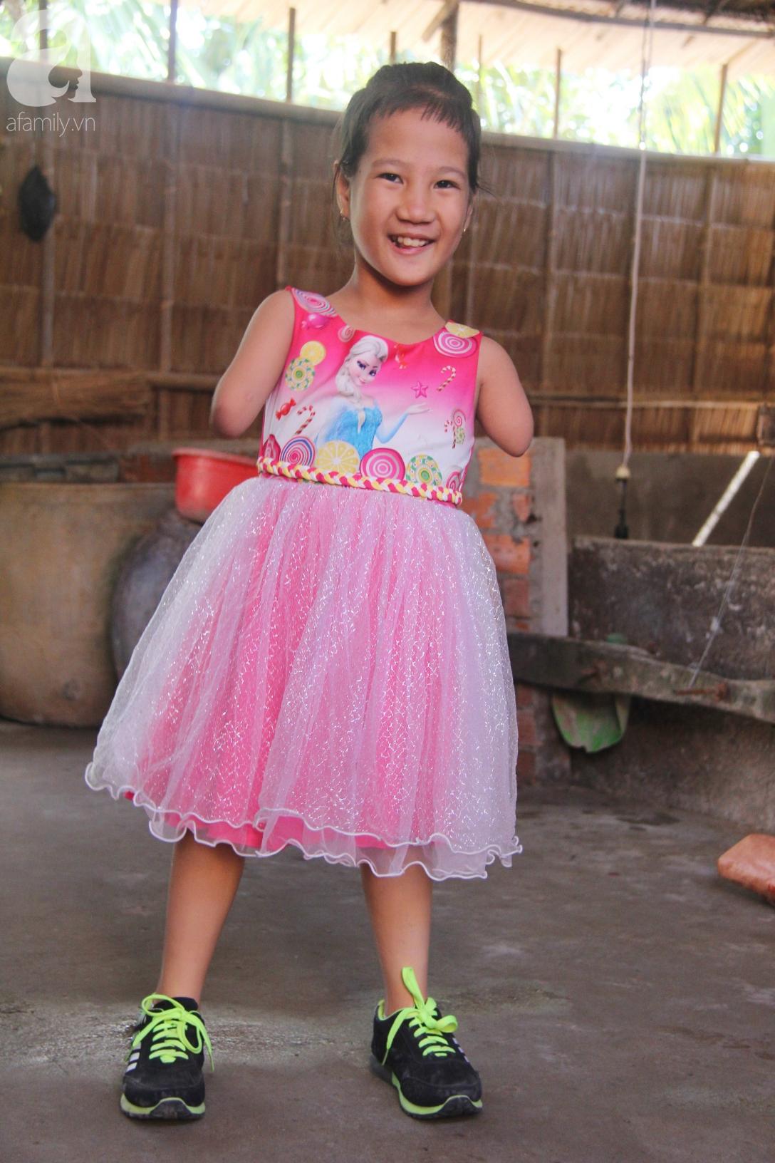 Tết đến, cô bé 8 tuổi cụt tay cụt chân Hiếu Thảo mừng rỡ khoe: Con có chân giả để đi học rồi - Ảnh 9.