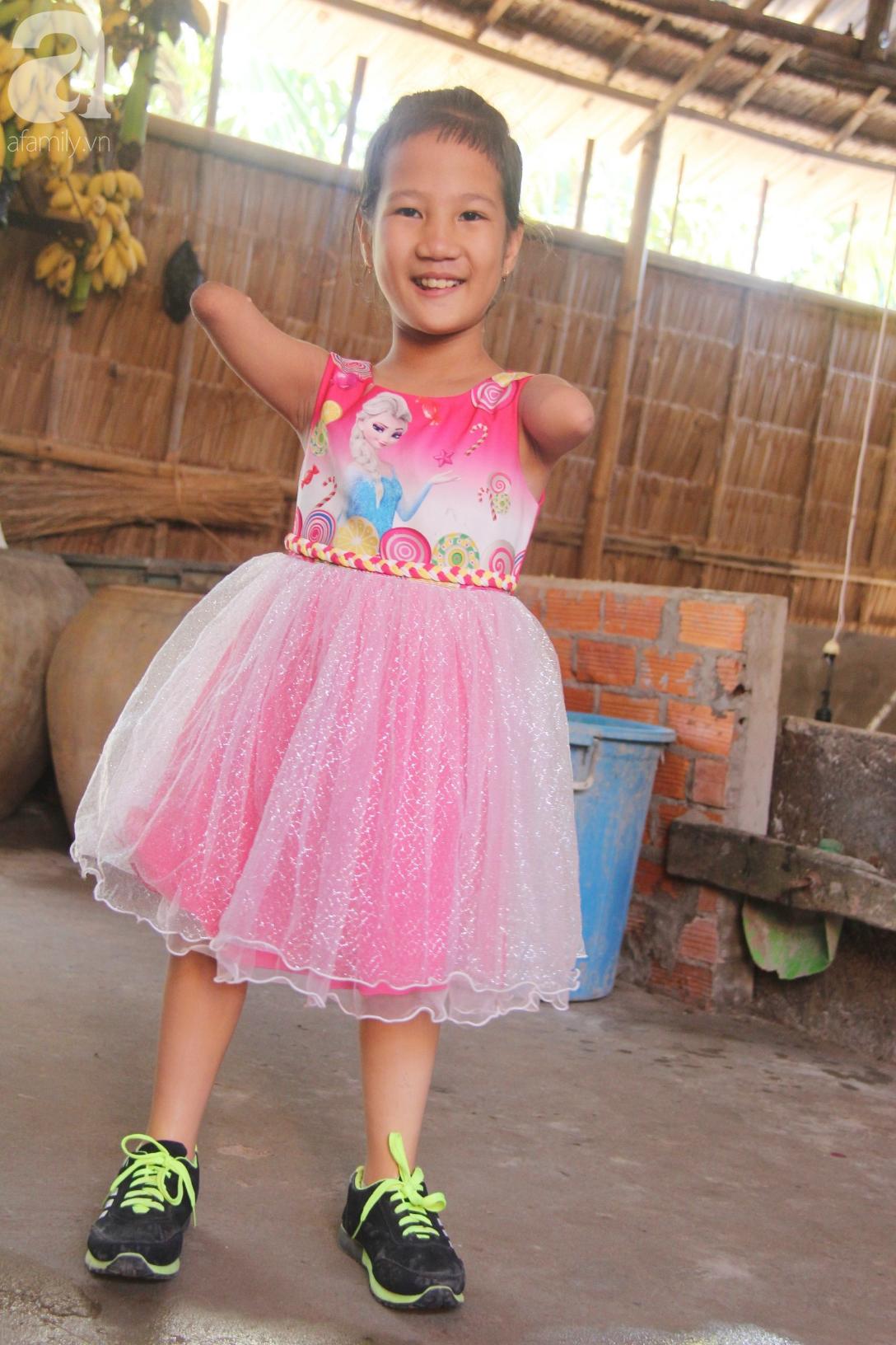 Tết đến, cô bé 8 tuổi cụt tay cụt chân Hiếu Thảo mừng rỡ khoe: Con có chân giả để đi học rồi - Ảnh 5.