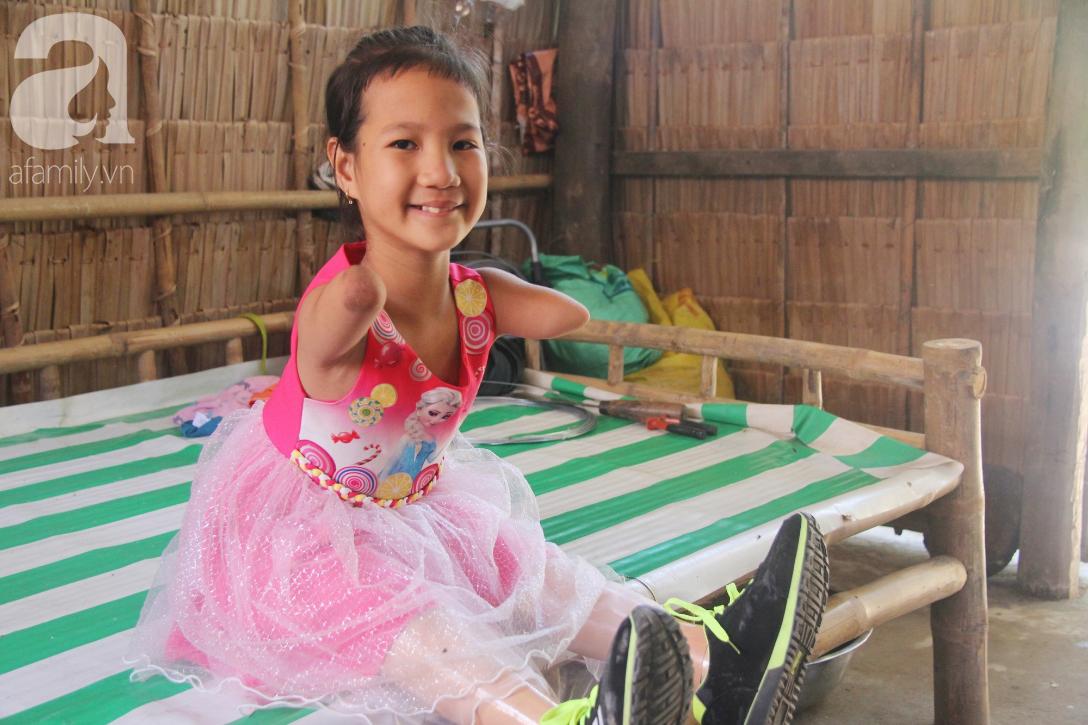 Tết đến, cô bé 8 tuổi cụt tay cụt chân Hiếu Thảo mừng rỡ khoe: Con có chân giả để đi học rồi - Ảnh 10.