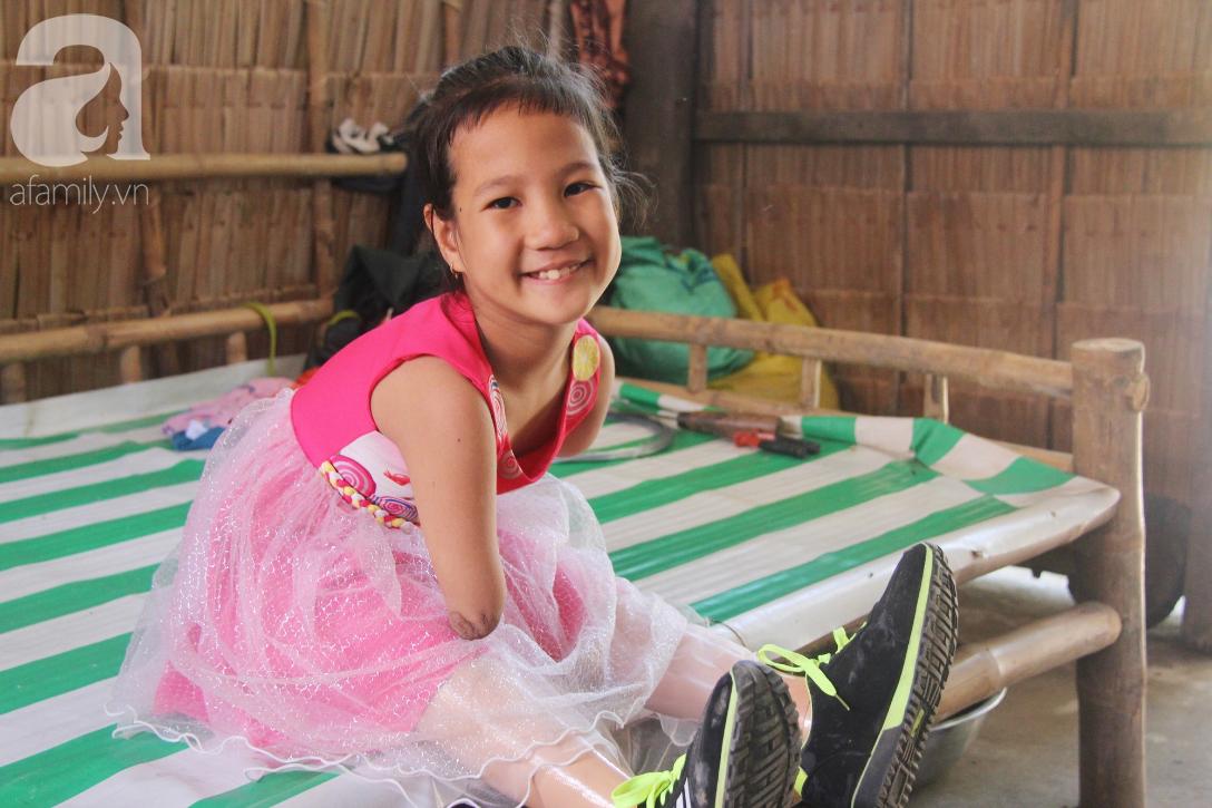 Tết đến, cô bé 8 tuổi cụt tay cụt chân Hiếu Thảo mừng rỡ khoe: Con có chân giả để đi học rồi - Ảnh 2.