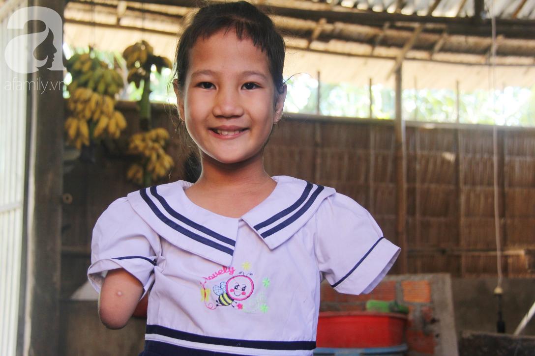 Tết đến, cô bé 8 tuổi cụt tay cụt chân Hiếu Thảo mừng rỡ khoe: Con có chân giả để đi học rồi - Ảnh 13.