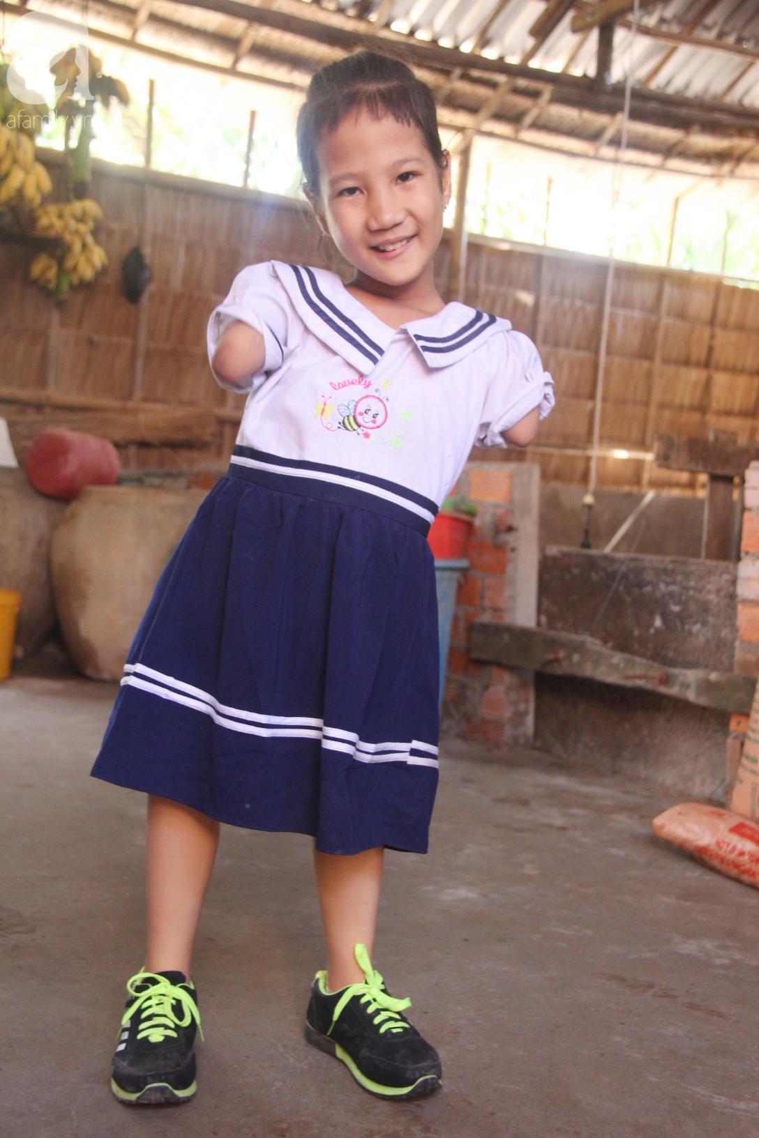 Tết đến, cô bé 8 tuổi cụt tay cụt chân Hiếu Thảo mừng rỡ khoe: Con có chân giả để đi học rồi - Ảnh 15.