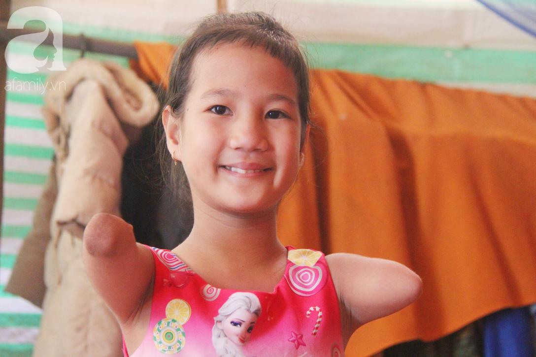 Tết đến, cô bé 8 tuổi cụt tay cụt chân Hiếu Thảo mừng rỡ khoe: Con có chân giả để đi học rồi - Ảnh 1.