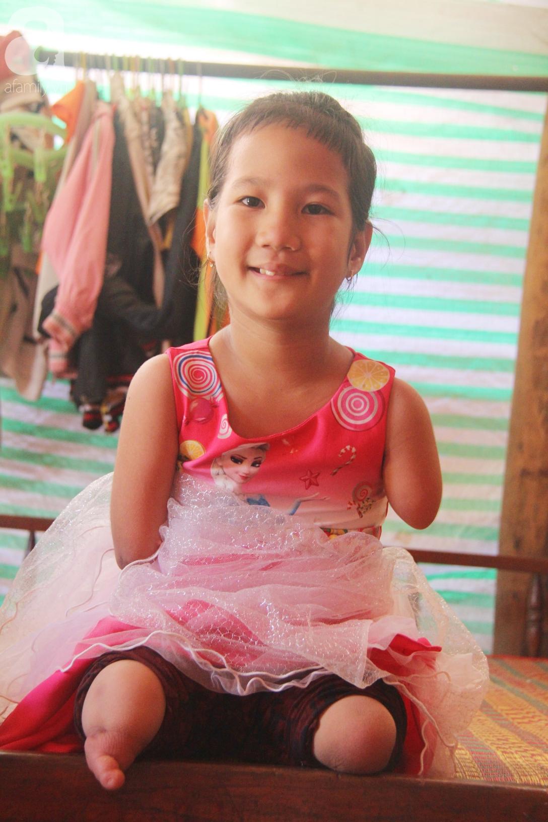Tết đến, cô bé 8 tuổi cụt tay cụt chân Hiếu Thảo mừng rỡ khoe: Con có chân giả để đi học rồi - Ảnh 7.