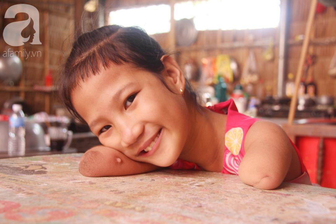 Tết đến, cô bé 8 tuổi cụt tay cụt chân Hiếu Thảo mừng rỡ khoe: Con có chân giả để đi học rồi - Ảnh 8.