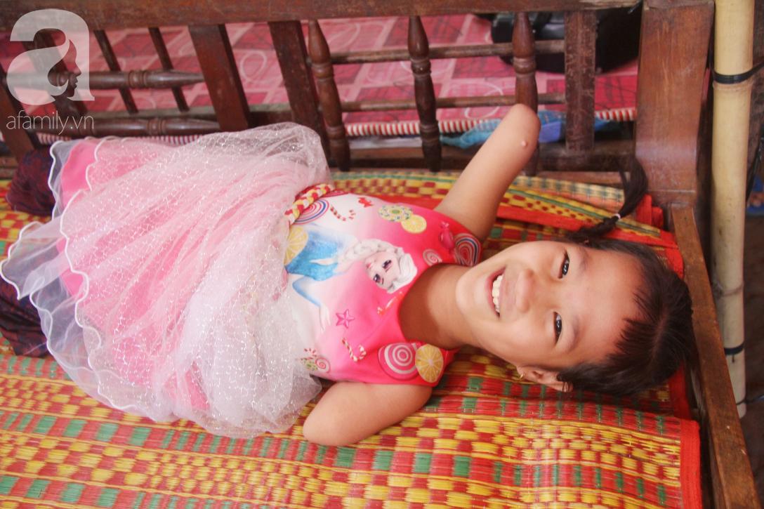 Tết đến, cô bé 8 tuổi cụt tay cụt chân Hiếu Thảo mừng rỡ khoe: Con có chân giả để đi học rồi - Ảnh 4.