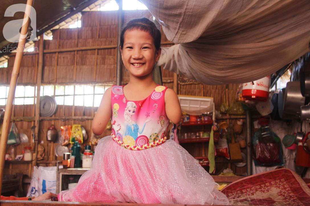 Tết đến, cô bé 8 tuổi cụt tay cụt chân Hiếu Thảo mừng rỡ khoe: Con có chân giả để đi học rồi - Ảnh 6.