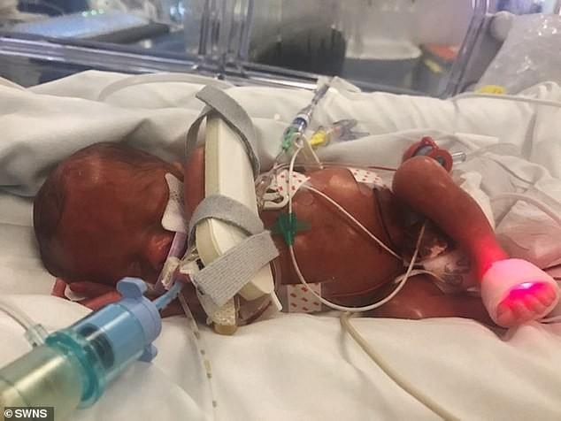 Chuyển dạ ở tuần 27 khi đang đi vệ sinh, bà mẹ trẻ vẫn sinh con an toàn chỉ nhờ một cuộc điện thoại  - Ảnh 2.