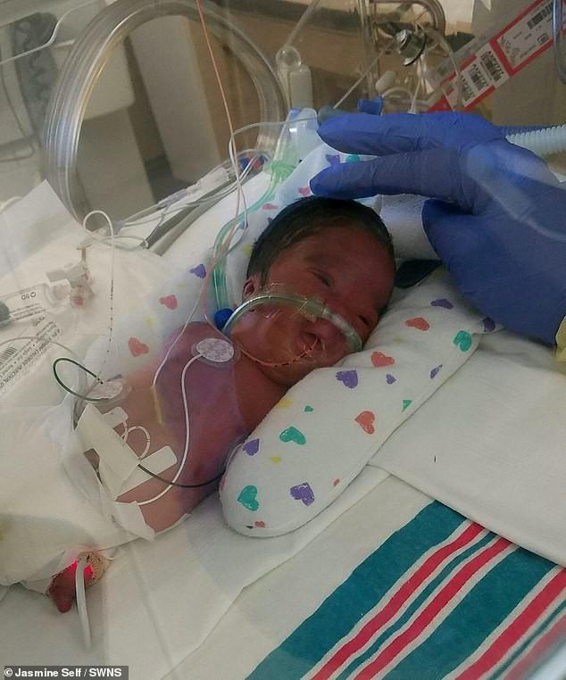 Thai nhi bị chẩn đoán mắc hội chứng hiếm gặp trên thế giới nhưng bà mẹ vẫn sinh con dù bé không có chân tay - Ảnh 2.