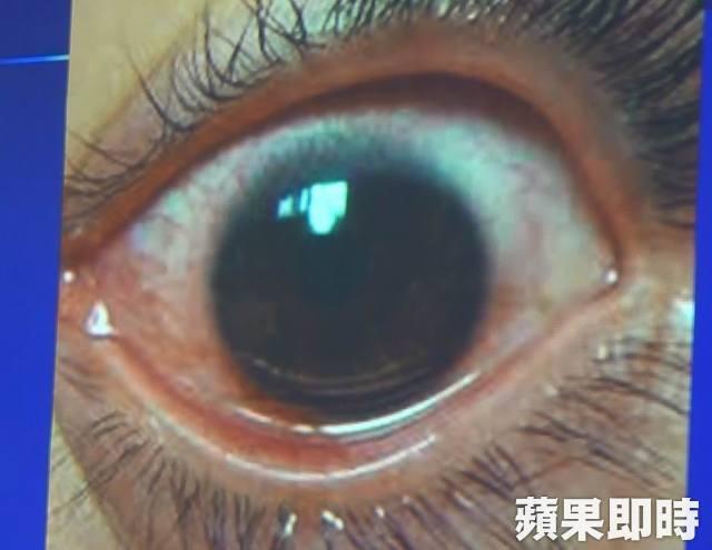 Cô gái trẻ 25 tuổi vô tình làm hỏng đôi mắt của mình trong 2 năm vì nhìn điện thoại kiểu này - Ảnh 3.