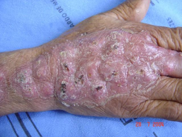 Phát ban lạ ở người đàn ông này cảnh báo bệnh nấm ai cũng có thể mắc phải  - Ảnh 2.