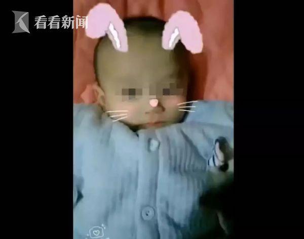 Bé trai sinh ra được hơn 4kg, bỗng nhiên bỏ ăn và gầy như bộ xương bởi chính căn bệnh hay gặp này ở trẻ - Ảnh 1.