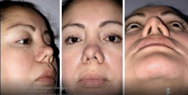 Đi hút mỡ để cải thiện ngoại hình, cô gái trẻ gặp phải bác sĩ có tâm khuyến mãi thêm chiếc mũi thảm họa - Ảnh 3.
