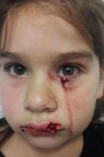 Bé gái vuốt ve chú chó ở sân bay, điều xảy đến tiếp theo khiến cả nhà hoảng loạn, chuyến đi bỗng biến thành ác mộng - Ảnh 1.