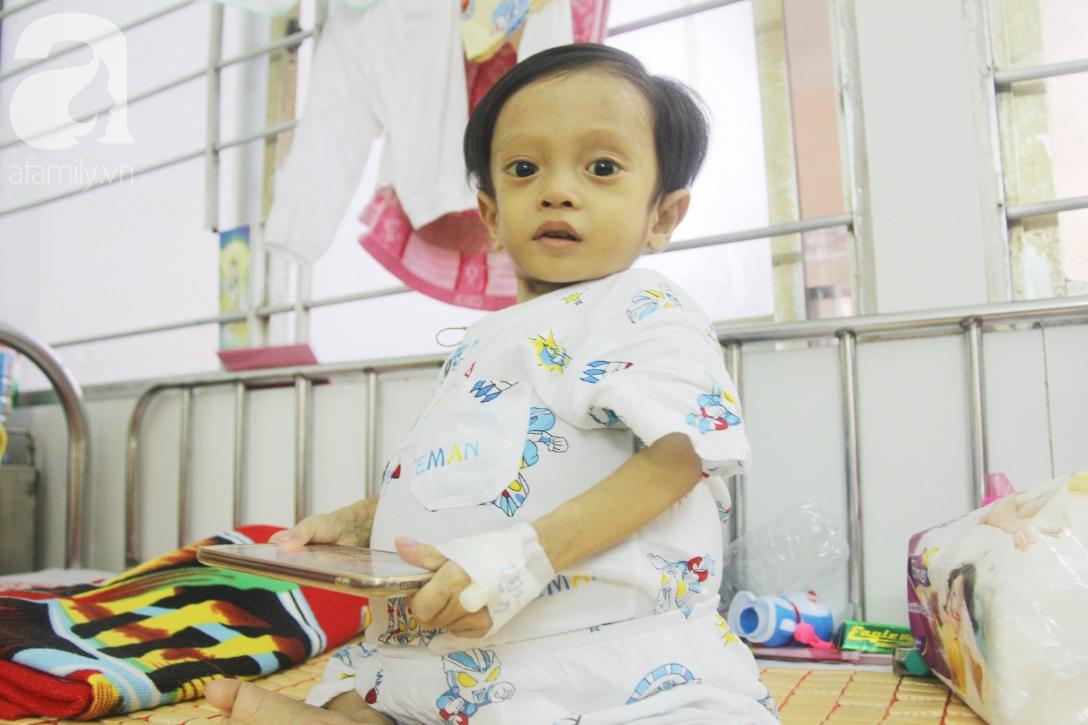 Gần 1,5 tỷ đồng giúp đỡ bé trai 19 tháng bị xơ gan, bụng to như cái trống có cơ hội đi nước ngoài chữa bệnh - Ảnh 9.