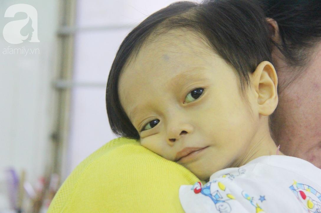 Gần 1,5 tỷ đồng giúp đỡ bé trai 19 tháng bị xơ gan, bụng to như cái trống có cơ hội đi nước ngoài chữa bệnh - Ảnh 2.