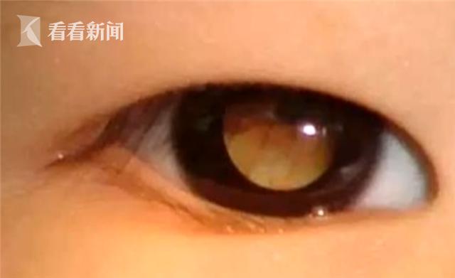 Em bé 42 ngày tuổi được người nhà đưa đi khám, bác sĩ liền phát hiện ra căn bệnh tử thần trong mắt bé và phải vội vàng họp khẩn cấp - Ảnh 3.