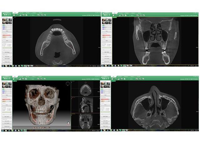 Trồng răng Implant thế nào để đảm bảo an toàn và thẩm mỹ? - Ảnh 4.