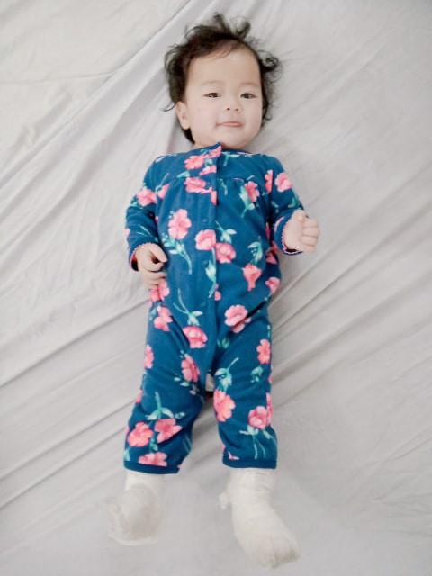 Em bé Hà Nội bị bà giúp việc đắp tỏi để chữa ho, nào ngờ hậu quả đau lòng lại xảy ra khiến bé bỏng nặng, nhập viện gần 2 tuần mới khỏi - Ảnh 3.