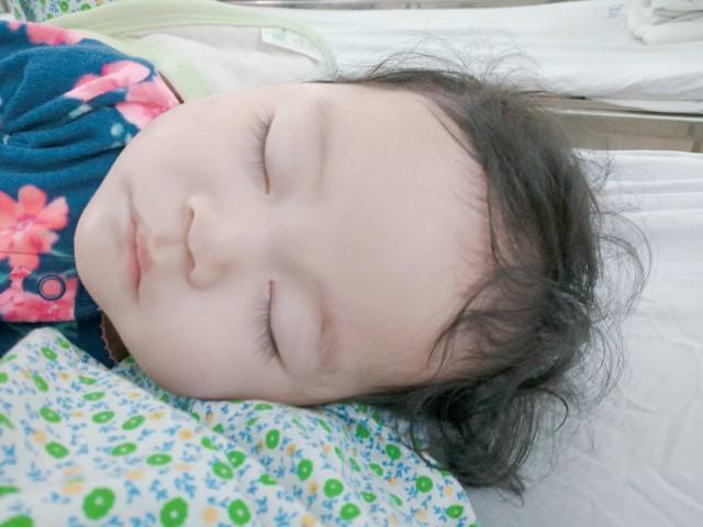 Em bé Hà Nội bị bà giúp việc đắp tỏi để chữa ho, nào ngờ hậu quả đau lòng lại xảy ra khiến bé bỏng nặng, nhập viện gần 2 tuần mới khỏi - Ảnh 4.