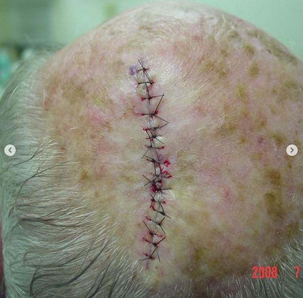 Chiếc lỗ đẫm máu trên đầu người đàn ông hóa ra lại là kết quả của việc điều trị ung thư da - Ảnh 2.