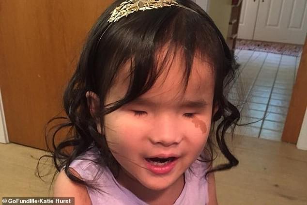 Cảm động chuyện bé gái sinh ra không có mắt khi được chụp quét não vẫn cất tiếng hát để trấn áp nỗi sợ hãi này - Ảnh 3.