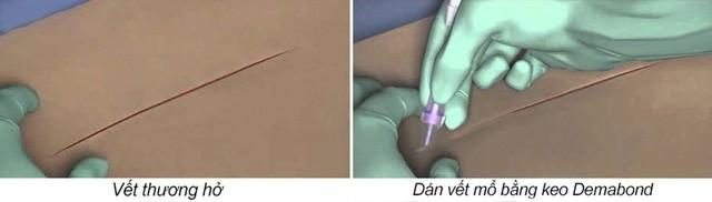 Phẫu thuật không khâu da – Giải pháp trọn vẹn cho lĩnh vực Phẫu thuật thẩm mỹ - Ảnh 3.