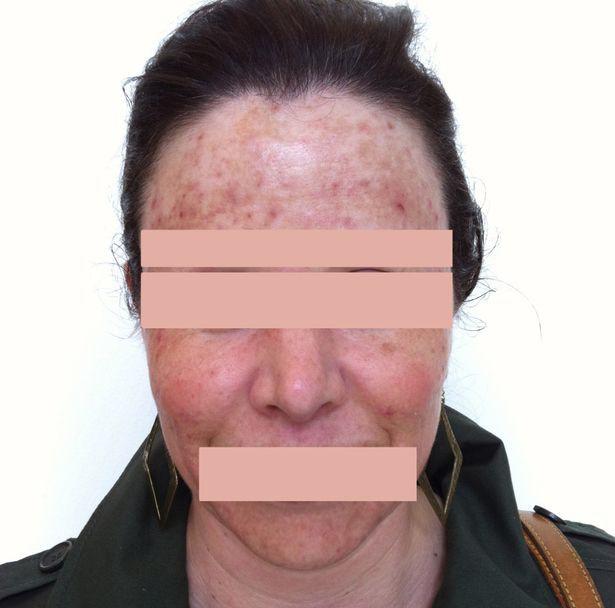 Nhìn bức ảnh khuôn mặt của người phụ nữ này chắc chắn ai cũng giật mình mỗi khi định nặn mụn - Ảnh 1.