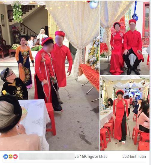 Cô dâu số nhọ bị ngã gãy chân ngay trước ngày cưới, dân tình xúm vào an ủi một câu mà ai cũng cười - Ảnh 1.