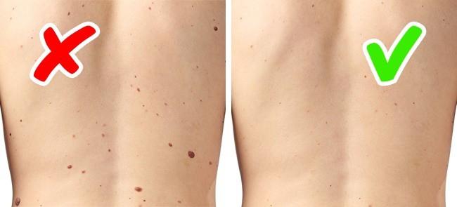 Nếu làn da của bạn xuất hiện 1 trong 8 dấu hiệu tưởng rất bình thường dưới đây, hãy coi chừng! - Ảnh 5.