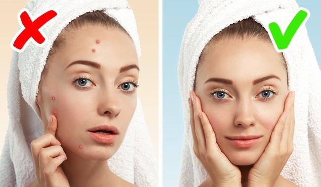 Nếu làn da của bạn xuất hiện 1 trong 8 dấu hiệu tưởng rất bình thường dưới đây, hãy coi chừng! - Ảnh 6.