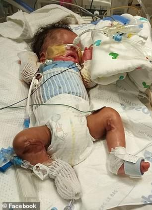 Mang thai chẳng thấy con tăng cân, đến ngày con chào đời bố mẹ đau quặn lòng khi thấy con bị mất toàn bộ da cổ, chân tay và mí mắt dính liền nhau đầy đau đớn - Ảnh 3.