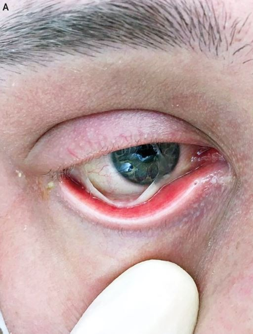 Bệnh nhân ung thư sốc nặng khi chứng kiến mắt bị rách chẳng khác nào… phim kinh dị - Ảnh 1.
