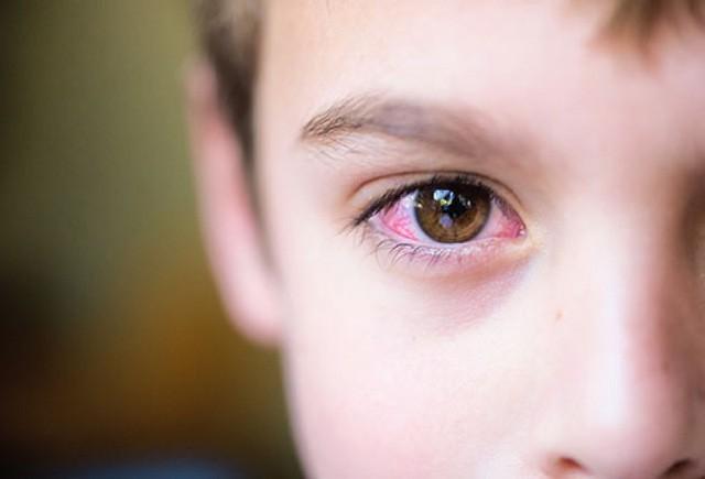 Đau mắt đỏ: Bệnh dễ gặp khi thời tiết sắp chuyển sang nóng bức - Ảnh 2.