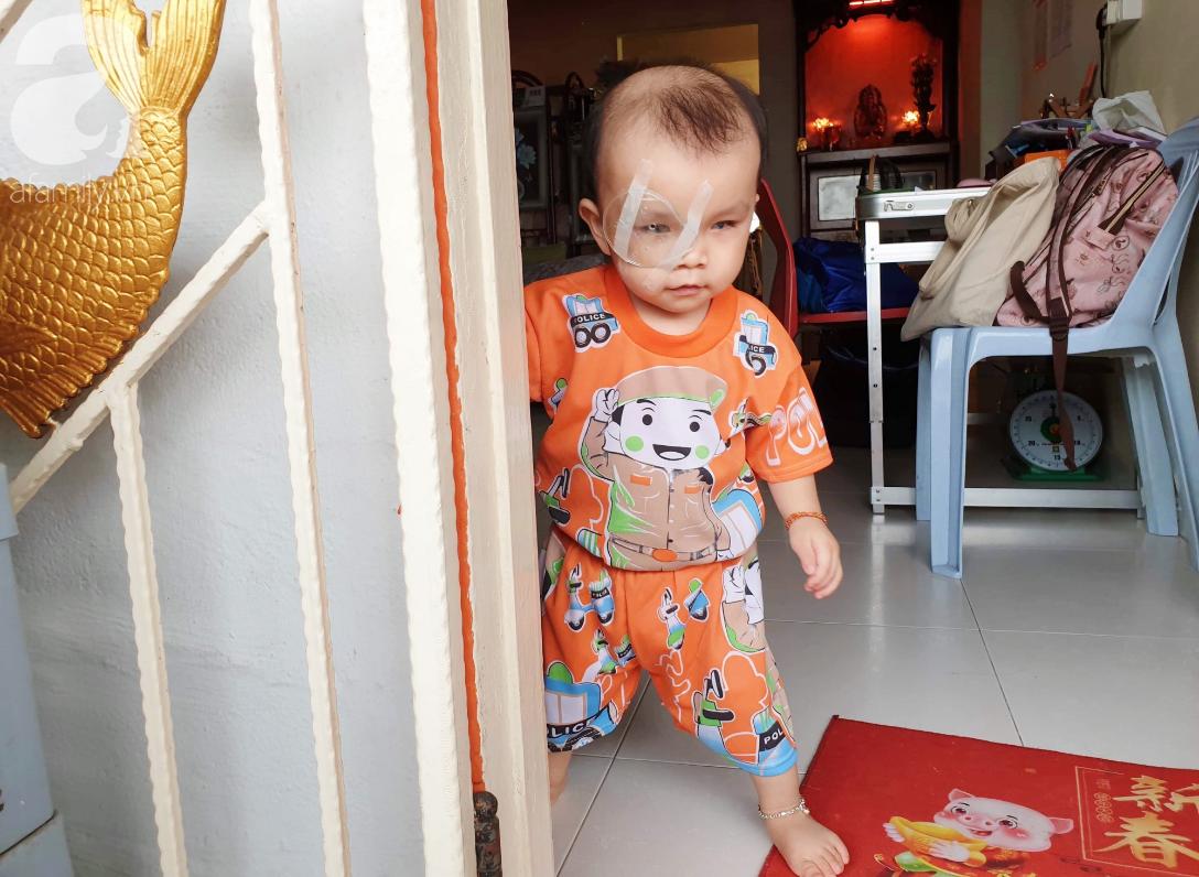 Bé trai 15 tháng tuổi có nguy cơ mù vĩnh viễn, người mẹ trẻ khóc cạn nước mắt đi tìm ánh sáng cho con - Ảnh 1.