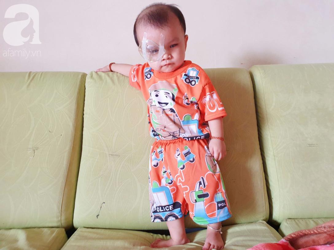 Bé trai 15 tháng tuổi có nguy cơ mù vĩnh viễn, người mẹ trẻ khóc cạn nước mắt đi tìm ánh sáng cho con - Ảnh 9.