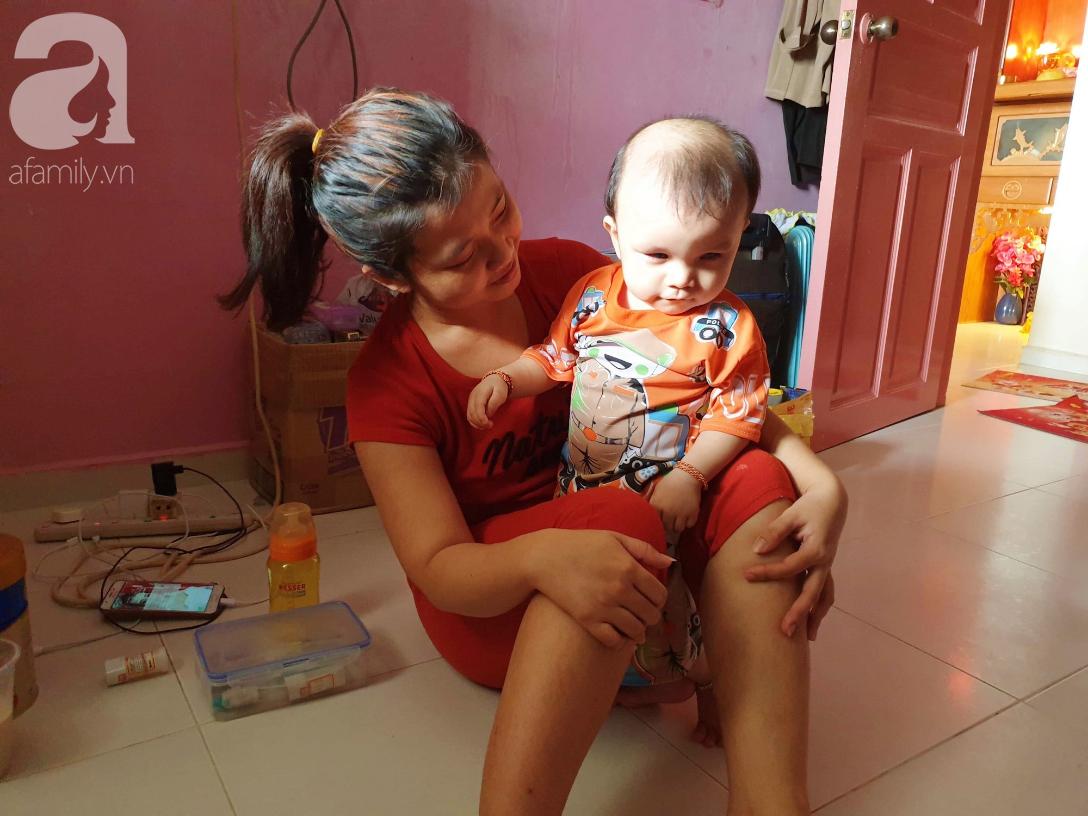 Bé trai 15 tháng tuổi có nguy cơ mù vĩnh viễn, người mẹ trẻ khóc cạn nước mắt đi tìm ánh sáng cho con - Ảnh 2.