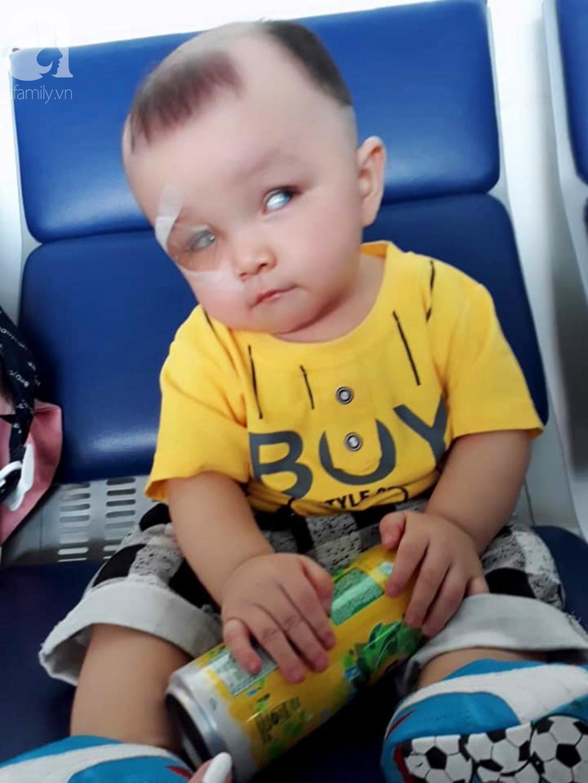 Bé trai 15 tháng tuổi có nguy cơ mù vĩnh viễn, người mẹ trẻ khóc cạn nước mắt đi tìm ánh sáng cho con - Ảnh 3.