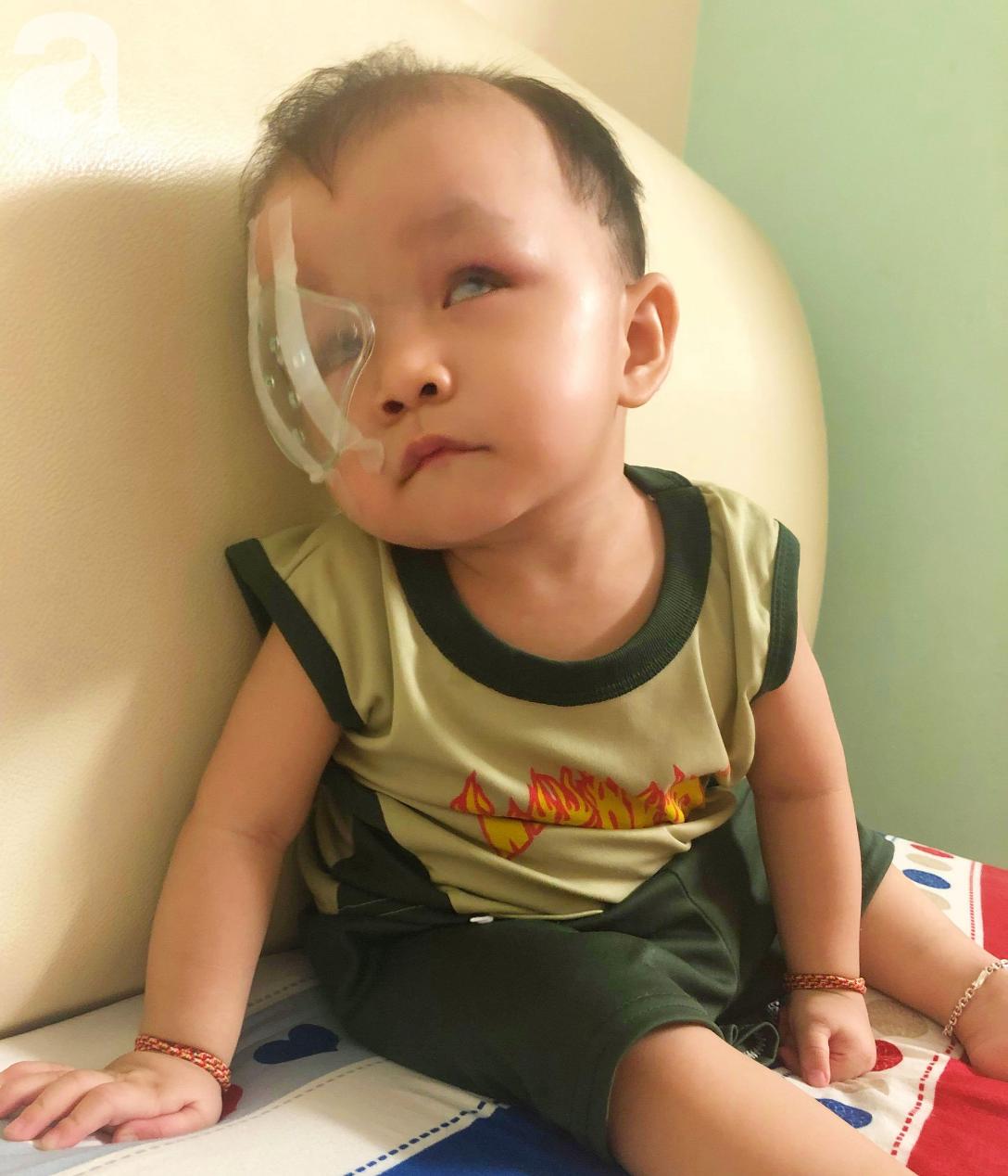 Bé trai 15 tháng tuổi có nguy cơ mù vĩnh viễn, người mẹ trẻ khóc cạn nước mắt đi tìm ánh sáng cho con - Ảnh 6.