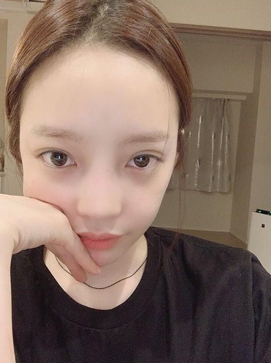 Hiếm lắm mới có nữ idol đình đám Kpop công khai việc dao kéo, lại còn khoe kết quả lên Instagram - Ảnh 6.