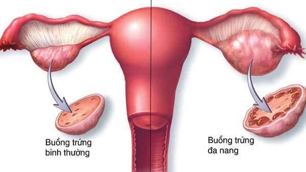 Ăn kiêng và tập thể dục có thể cải thiện hội chứng buồng trứng đa nang không? - Ảnh 3.