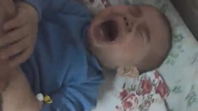 Đưa con trai 10 tháng tuổi đến bệnh viện điều trị bệnh hô hấp, bố mẹ đau đớn thấy cơ thể con bị hủy hoại vì sai lầm khủng khiếp của y tá - Ảnh 2.