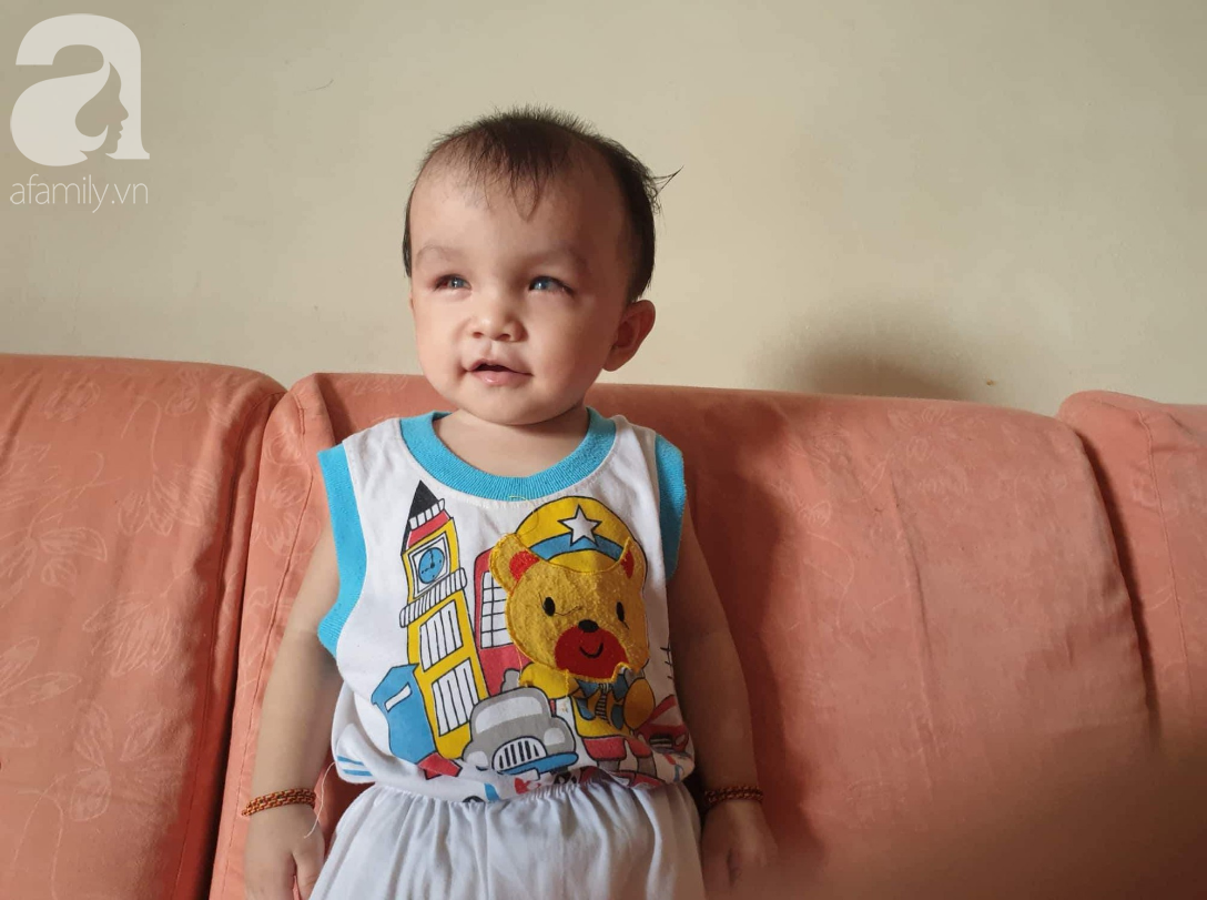 Hi vọng đến với bé trai 15 tháng tuổi bị mù bẩm sinh, mẹ trẻ cúi đầu, ôm con đi tìm ánh sáng - Ảnh 1.