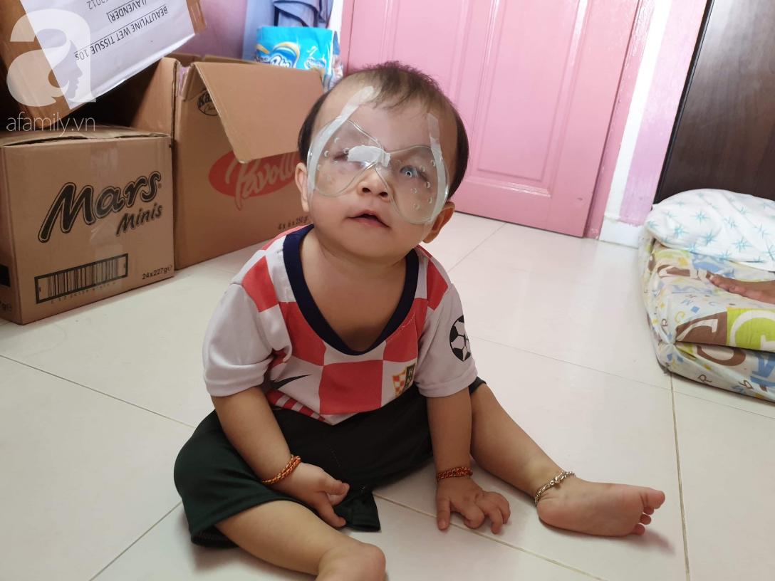 Hi vọng đến với bé trai 15 tháng tuổi bị mù bẩm sinh, mẹ trẻ cúi đầu, ôm con đi tìm ánh sáng - Ảnh 3.
