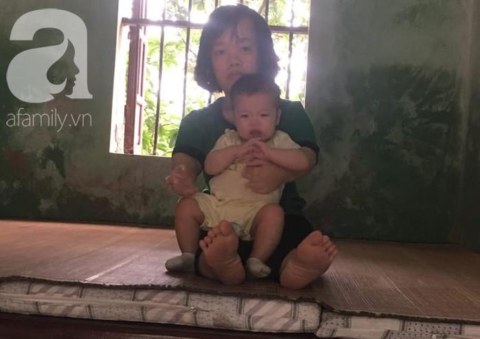 Xót cảnh bố mẹ trẻ tật nguyền đi làm thuê, gom góp tiền níu giữ mạng sống từng ngày cho con gái 9 tháng tuổi - Ảnh 3.